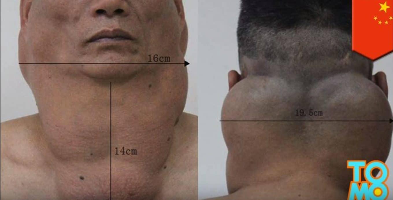 Od ponad 30 lat pił codziennie 2 litry WÓDKI! Zobacz co NAŁÓG zrobił z jego CIAŁEM! (foto)
