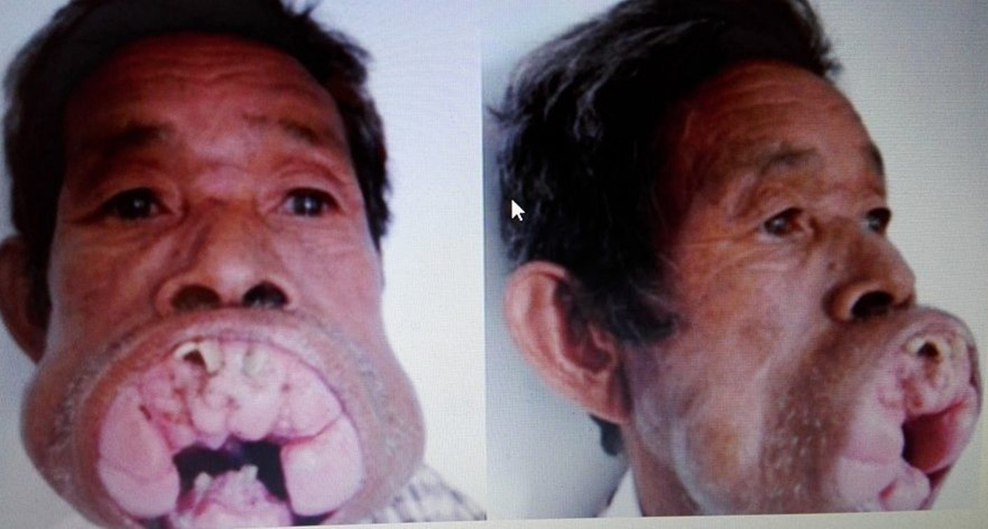 Przez 30 LAT ŻYŁ z ogromną naroślą na USTACH, która przeszkadzała mu w normalnym funkcjonowaniu! Lekarze dokonali CUDU i sprawili, że dziś to zupełnie INNY CZŁOWIEK!(foto)